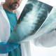 Doctor examining x-ray of the human spine - PhotoDune Item for Sale
