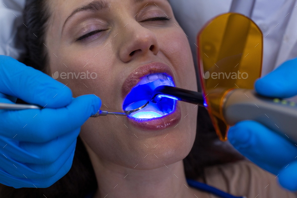 Dentists examining female patient with dental curing light - Stock Photo - Images
