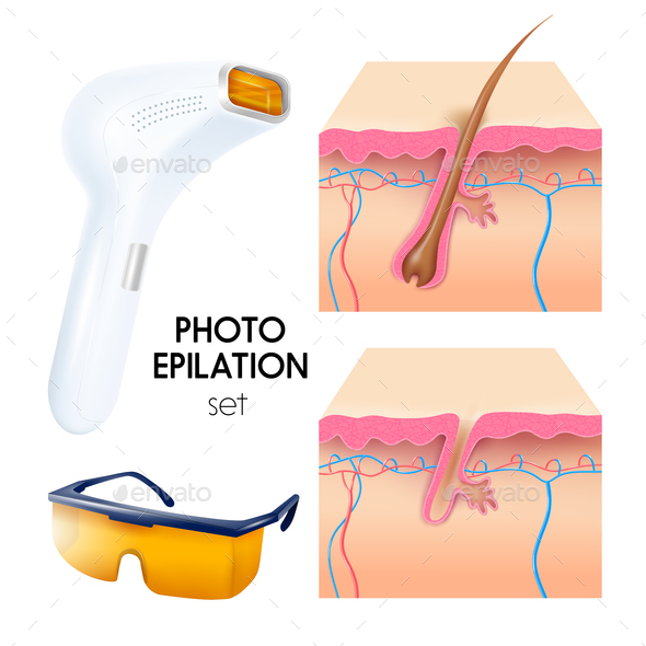 Photo Epilation Realistic Set - Health/Medicine Conceptual