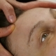 Plastic Face Massage in Spa Saton - VideoHive Item for Sale