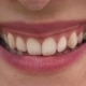 Mouth of Woman with Beautiful Lips and White Teeth Smiling Broadly - VideoHive Item for Sale