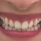 Female Mouth with Beautiful Lips and White Teeth Smiling - VideoHive Item for Sale
