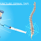 Lumbar Puncture Realistic Vector Medical Scheme - GraphicRiver Item for Sale