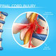 Human Spinal Cord Injury Anatomical Vector Scheme - GraphicRiver Item for Sale