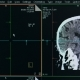 Process of Brain Scanning - VideoHive Item for Sale