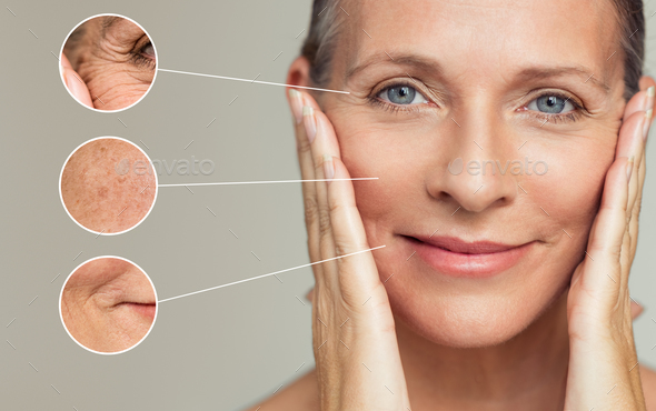 Wrinkles and skin imperfection - Stock Photo - Images