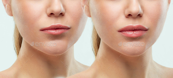 Before and after lips filler injections. Beauty plastic. Beautiful perfect lips with natural makeup. - Stock Photo - Images