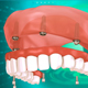 Dental Implant - VideoHive Item for Sale