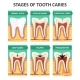 Stages of Tooth Caries - GraphicRiver Item for Sale