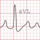 Electrocardiogram Heartbeat - VideoHive Item for Sale