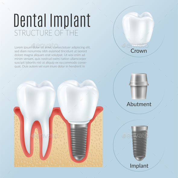 Realistic Dental Implant Infographics - Health/Medicine Conceptual