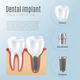 Realistic Dental Implant Infographics - GraphicRiver Item for Sale