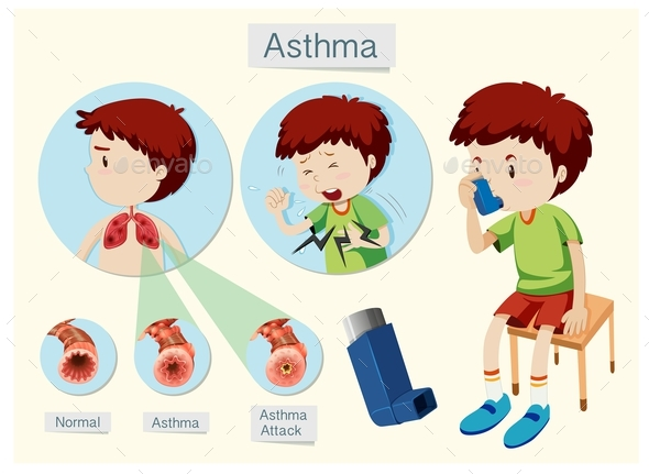 A Human Anatomy And Health Asthma by BlueRingMedia | GraphicRiver