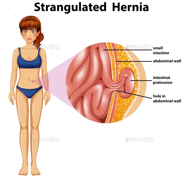 Woman Strangulated Hernia Diagram By Blueringmedia Graphicriver