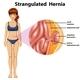 Woman Strangulated Hernia Diagram
