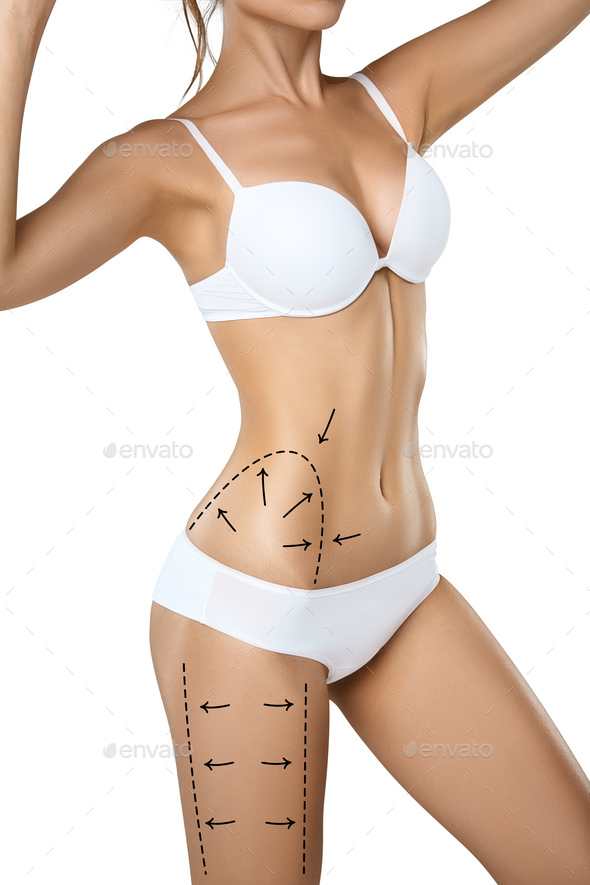b38e03a8e0 Woman torso in underwear with medical marks for plastic surgery or  liposuction - Stock Photo -