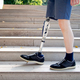 Young man with prosthetic leg walking - PhotoDune Item for Sale