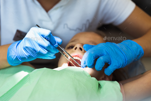 Child to the dentist. Child in the dental chair dental treatment - Stock Photo - Images