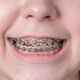 Broad smile girl with metal braces. - PhotoDune Item for Sale