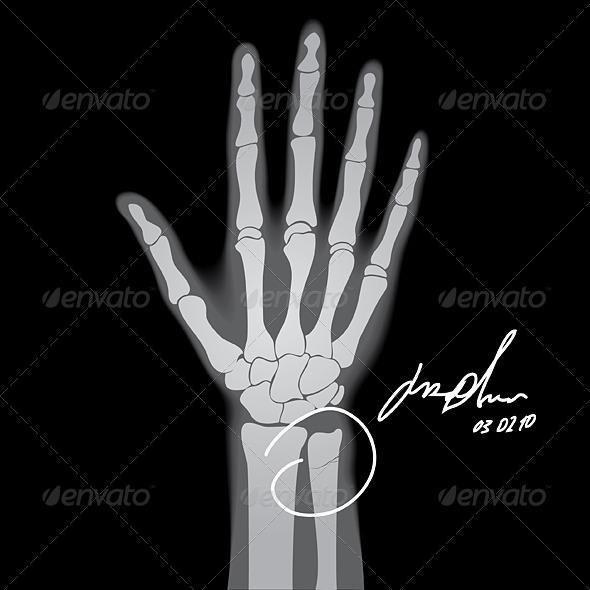 Brooken Hand - Health/Medicine Conceptual