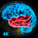 Brain Structure (4-pack) - VideoHive Item for Sale