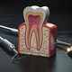 Tooth model cross section with dental tools on black wooden tabl - PhotoDune Item for Sale