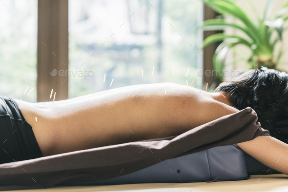 Therapist Giving Cupping Treatment To Young Asian Woman - Stock Photo - Images