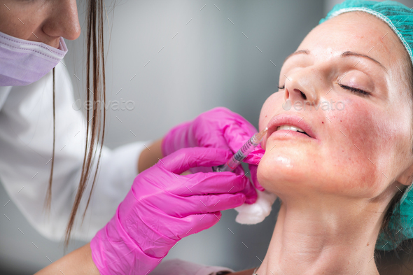 Hyaluronic Acid Fillers for Lips - Stock Photo - Images
