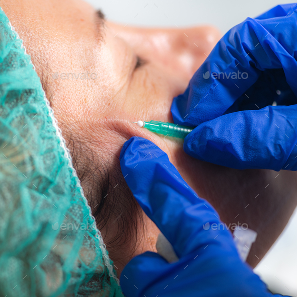 Meso Threads Face Lifting Treatment. Mesotherapy in Aesthetic Medicine - Stock Photo - Images