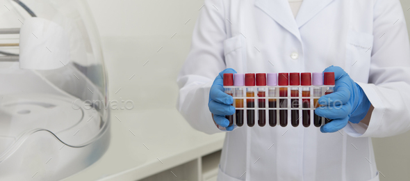Woman collecting blood in test tubes and bring to testing - Stock Photo - Images