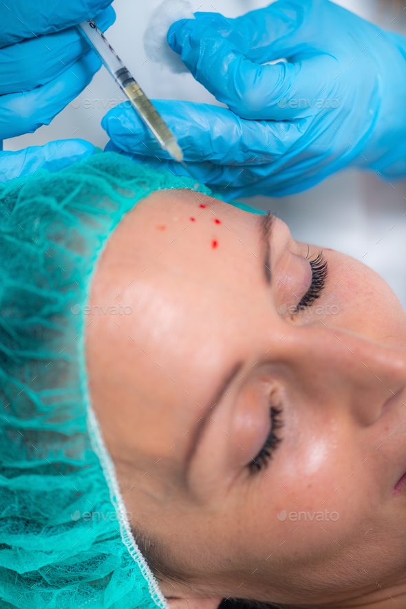 PRP or Platelet Rich Plasma Cosmetic Face Treatment - Stock Photo - Images