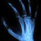 X-ray hand - PhotoDune Item for Sale