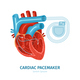 Heart Pacemaker Illustration
