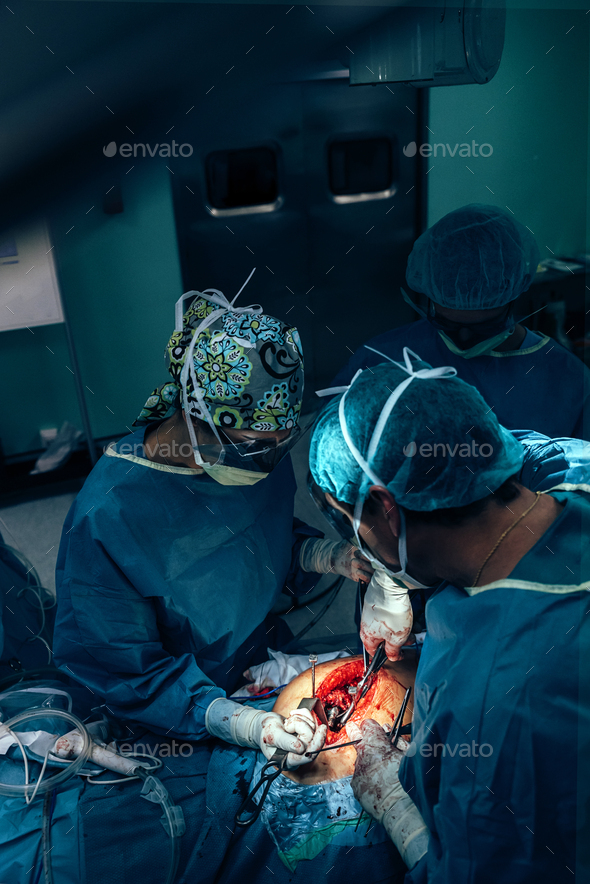 Team of Surgeons Operating. - Stock Photo - Images