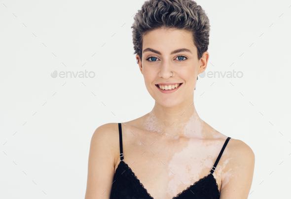Vitiligo woman beauty portrait - Stock Photo - Images