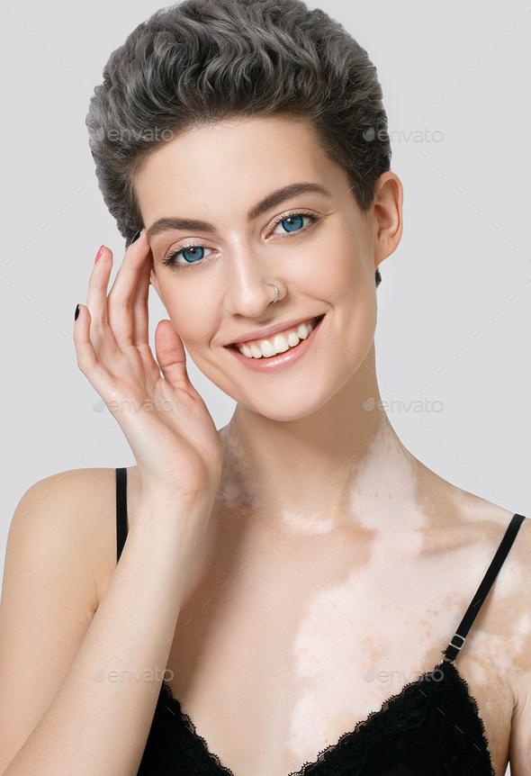 Vitiligo woman female beauty portrait - Stock Photo - Images