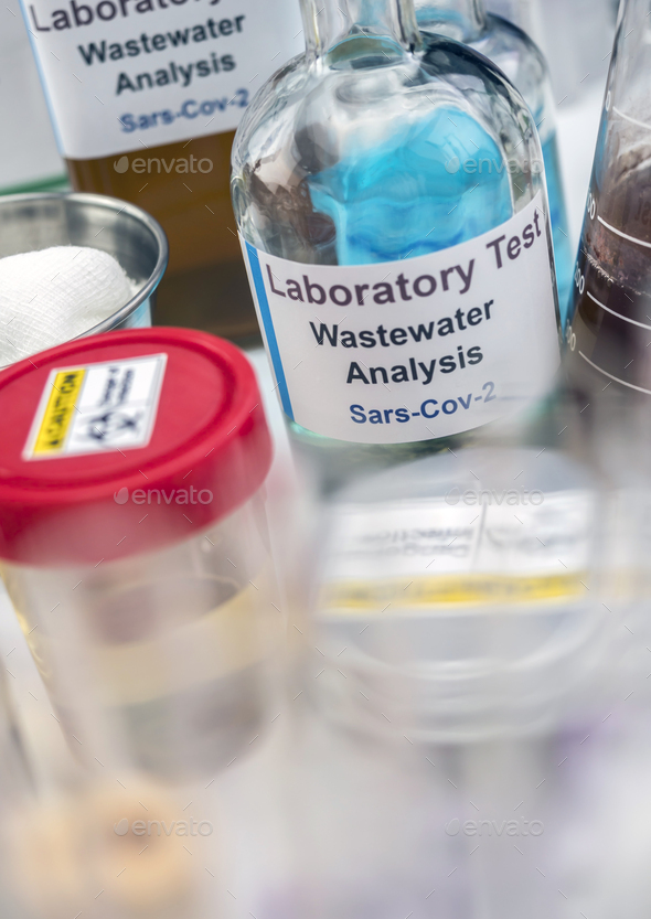 Wastewater samples, analysis of sars-cov-2 virus in patients infected by human coronavirus 229E - Stock Photo - Images