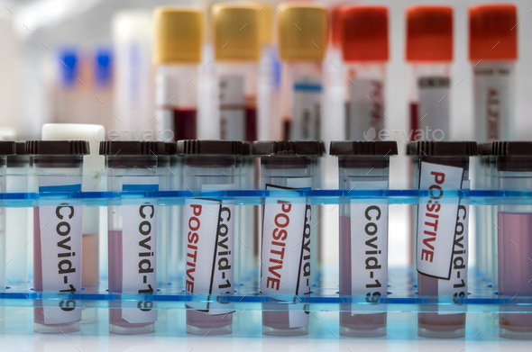 Vials with samples of SARS-COV-2 Covid-19 in a research laboratory, conceptual image - Stock Photo - Images