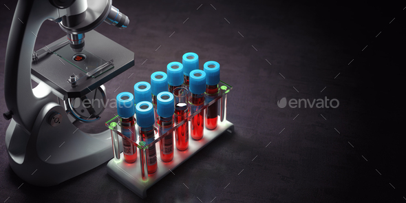 Blood test samples tubes and microscope on black background. Healthcare, medical laboratory concept. - Stock Photo - Images