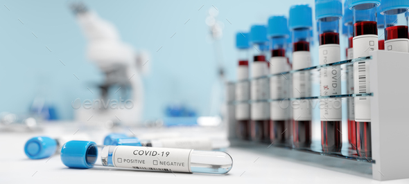 Testing for coronavirus Covid-19 in a lab. Covid medical screening - Stock Photo - Images