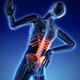 Medically Accurate Animation Of Spinter With Painful Joints - 40