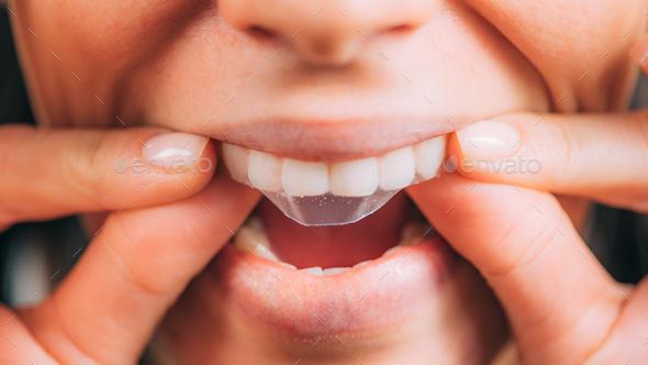 Whitestrips or Teeth Whitening Strips. - Stock Photo - Images
