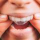 Whitestrips or Teeth Whitening Strips. - PhotoDune Item for Sale