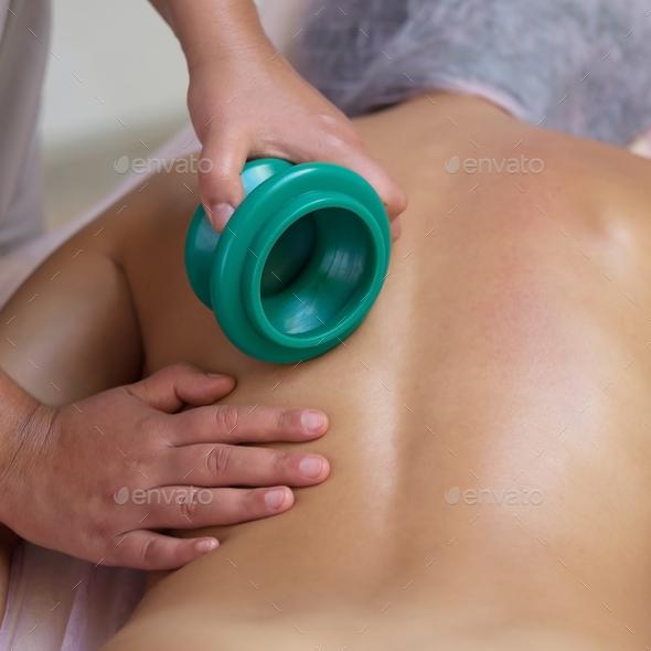 Massage therapist massaging young woman. Vacuum massage - Stock Photo - Images