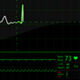 Heartbeat monitor - VideoHive Item for Sale