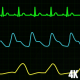 Medical ECG Screen Monitor - VideoHive Item for Sale
