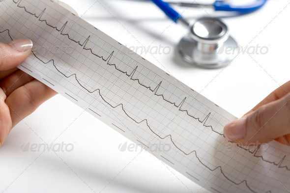 Hands Holding A Regular Ecg With A Stethoscope - Stock Photo - Images