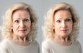 anti-wrinkle treatment - PhotoDune Item for Sale