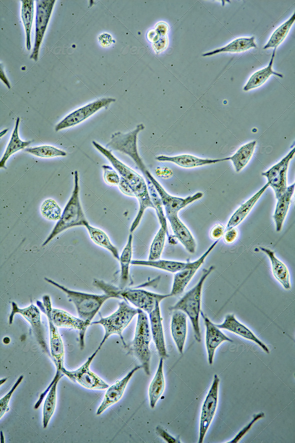 Prostate Cancer cells - Stock Photo - Images