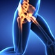 Hip Painful Skeleton X-Ray - Medical Concept - VideoHive Item for Sale